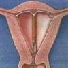 UID v děloze